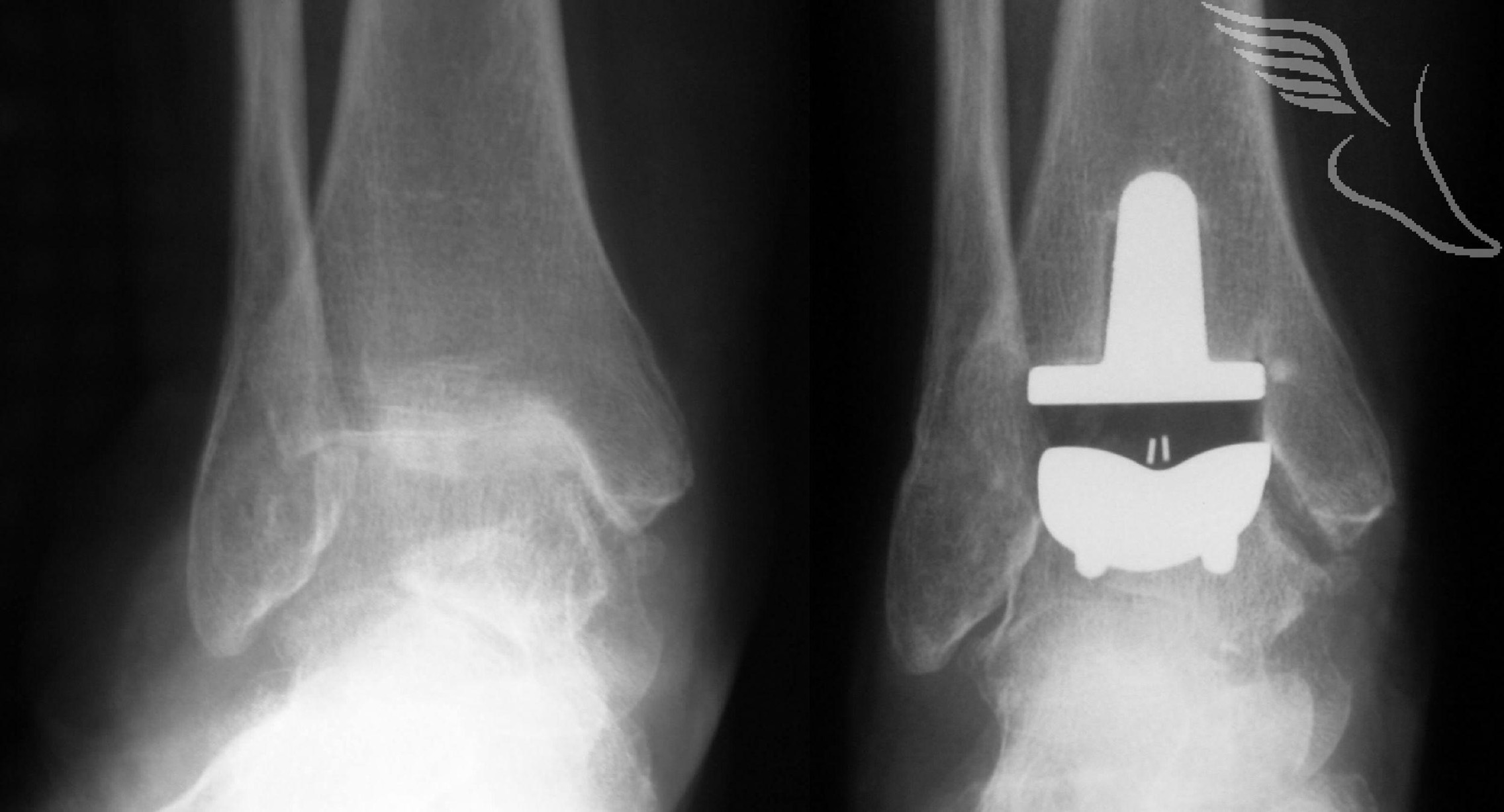 ankle-replacement-75