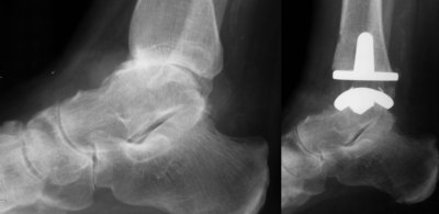 ankle-replacement-xrays