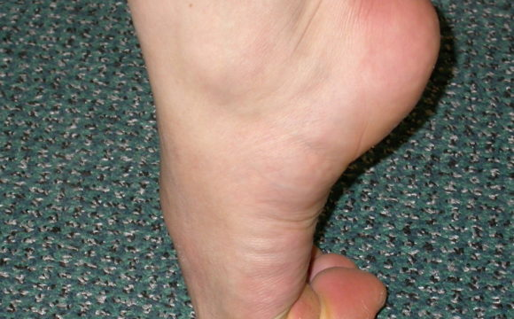 Hallux Rigidus (Big Toe Arthritis)